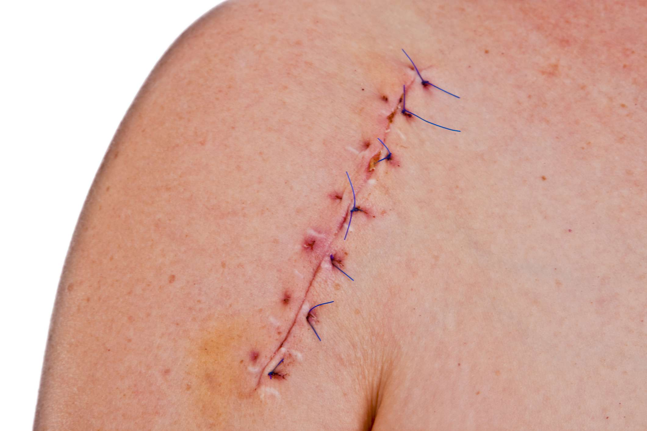Sutured shoulder surgery incision