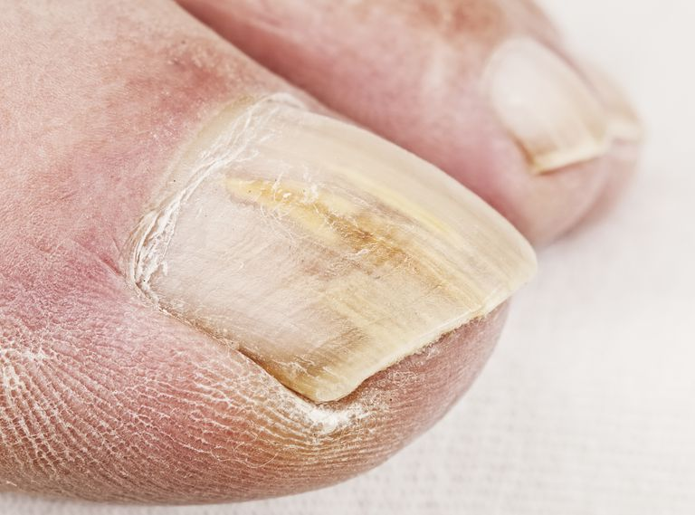 Topical Treatment Options for Toenail Fungus