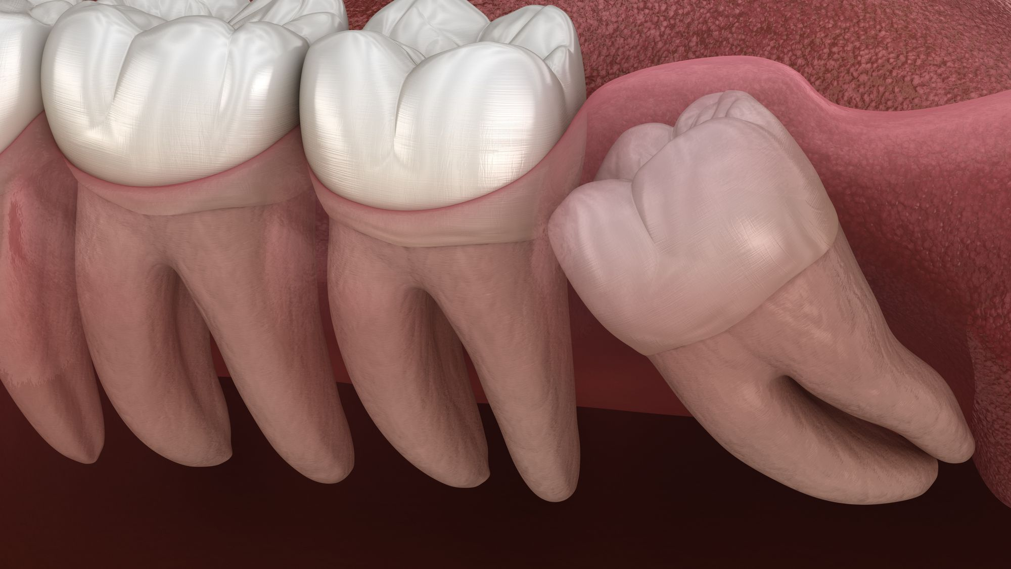 Wisdom Teeth Removal Surgery Preparation And Recovery