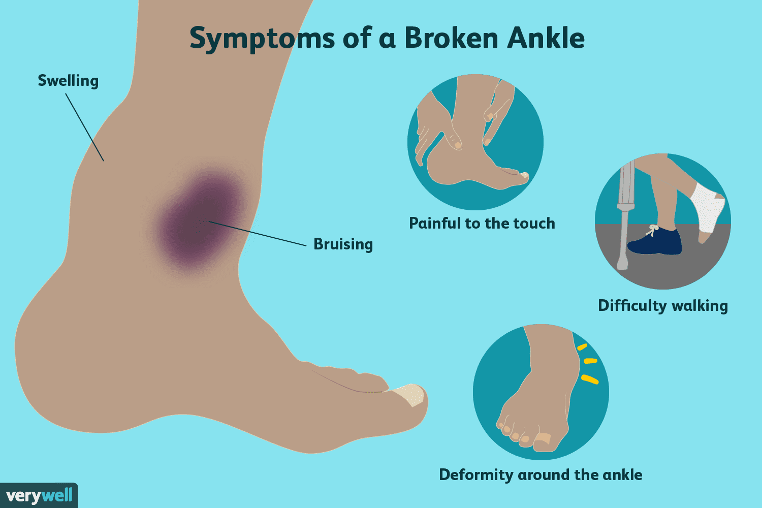 Most Common Types of Ankle Fractures