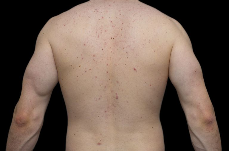 skin rash on back could be from chemotherapy