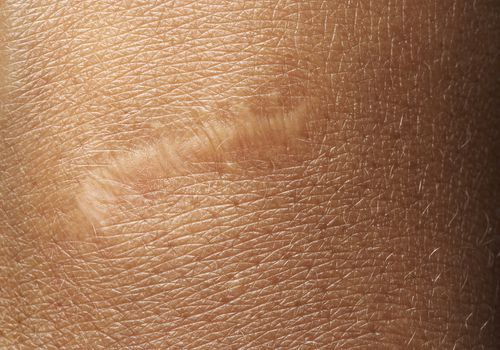 Scar on wrist, close up