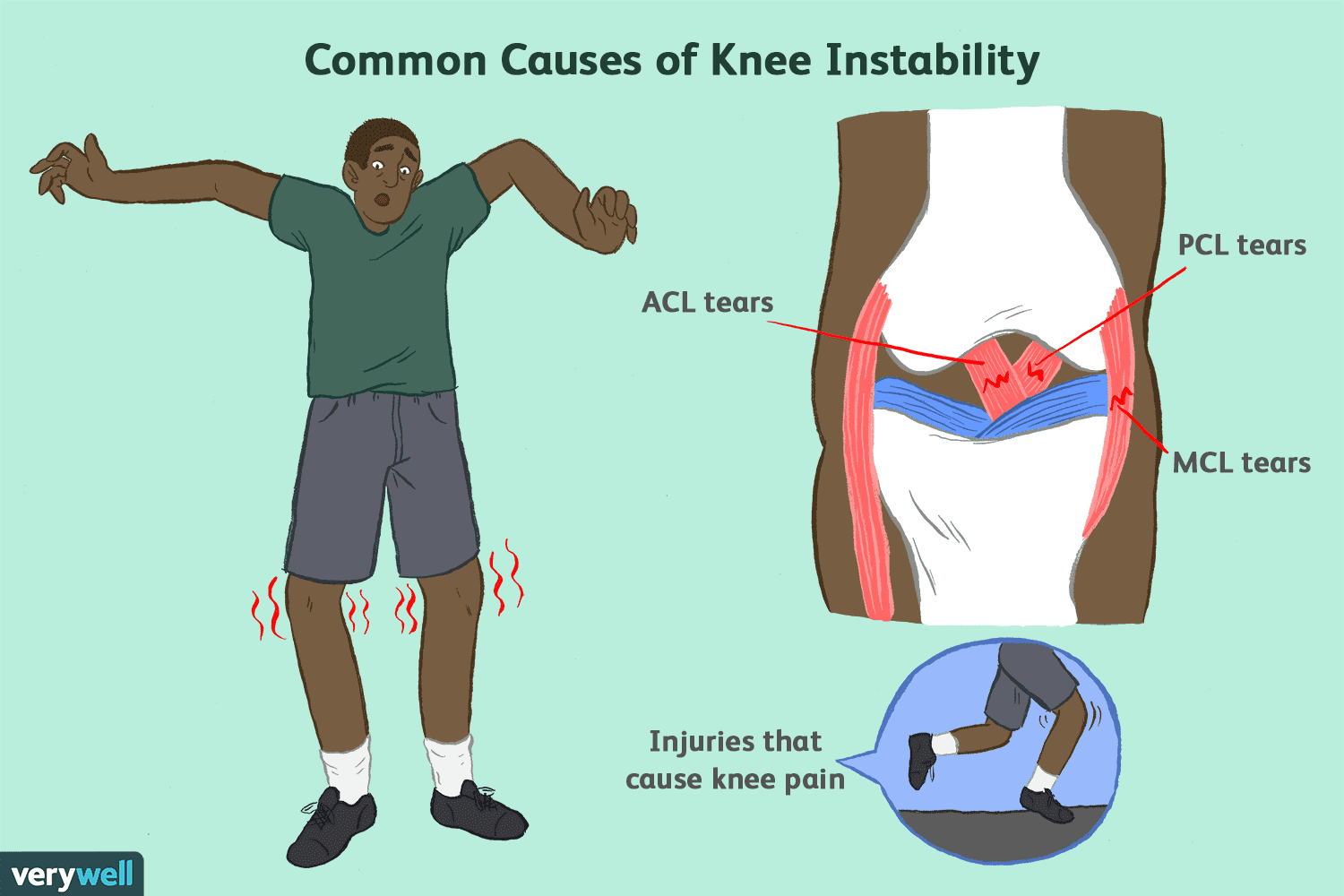 common causes of knee instability