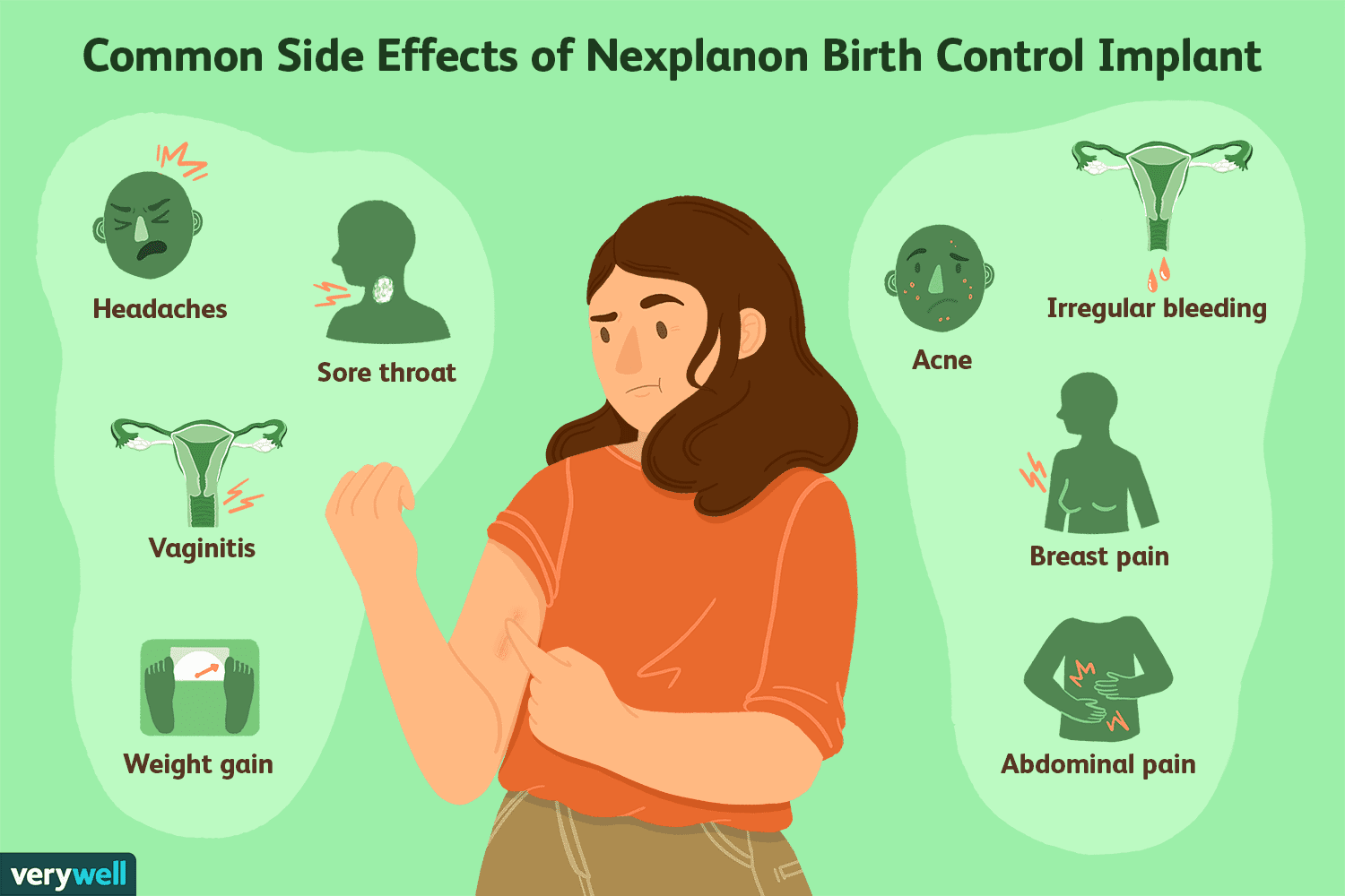 Nexplanon: What You Should Know About the Birth Control Implant
