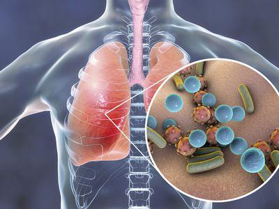 Pneumonia, conceptual illustration