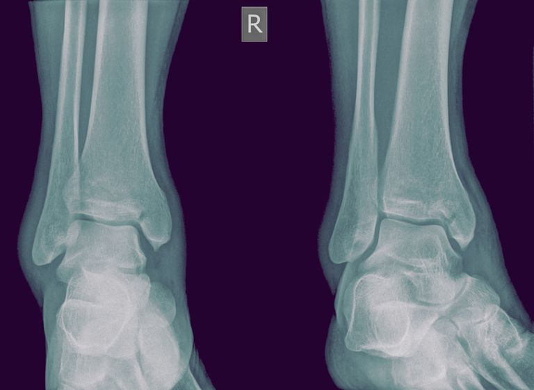 Medial Malleolus Fracture and Broken Ankle Treatment