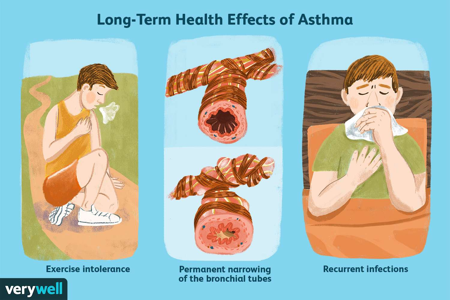 Long-Term Health Effects of Asthma