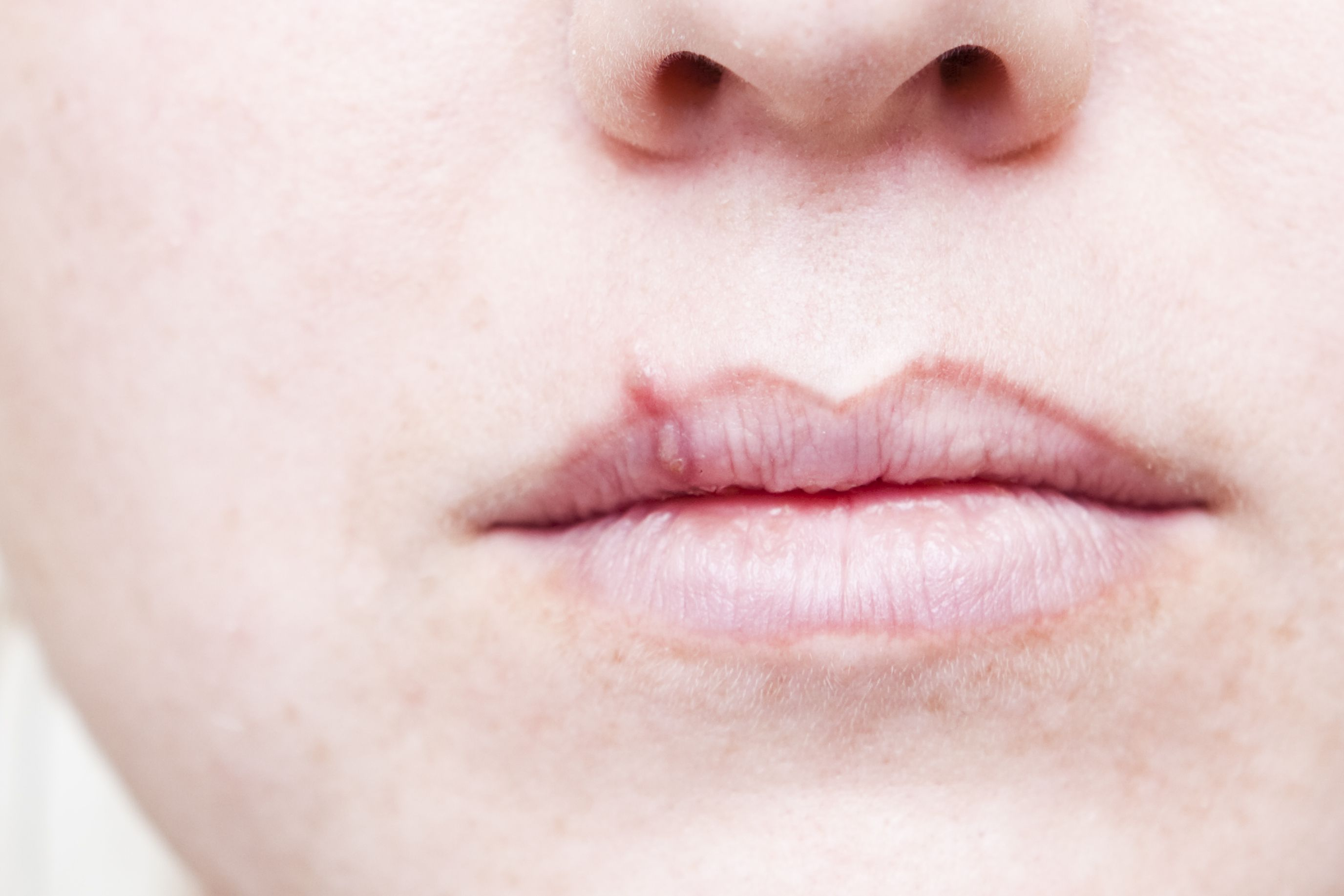 Are Cold Sores and Fever Blisters Caused by Colds?