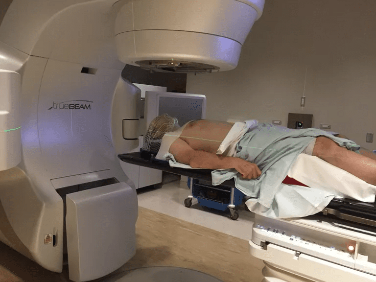 Man using Stereotactic Body Radiation Therapy (SBRT)
