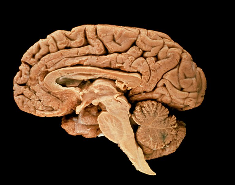 Section through a human brain