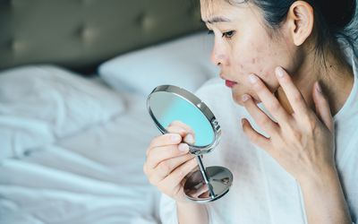 Close up of Asian woman looking at acne and scars in a mirror