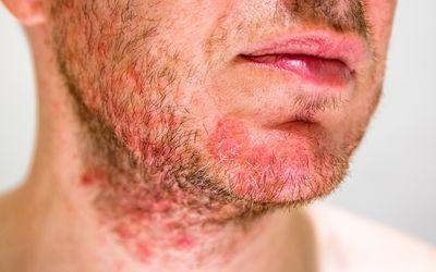 Seborrheic dermatitis in a man's beard area