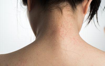 Contact Dermatitis: Symptoms, Causes, Diagnosis, Treatment