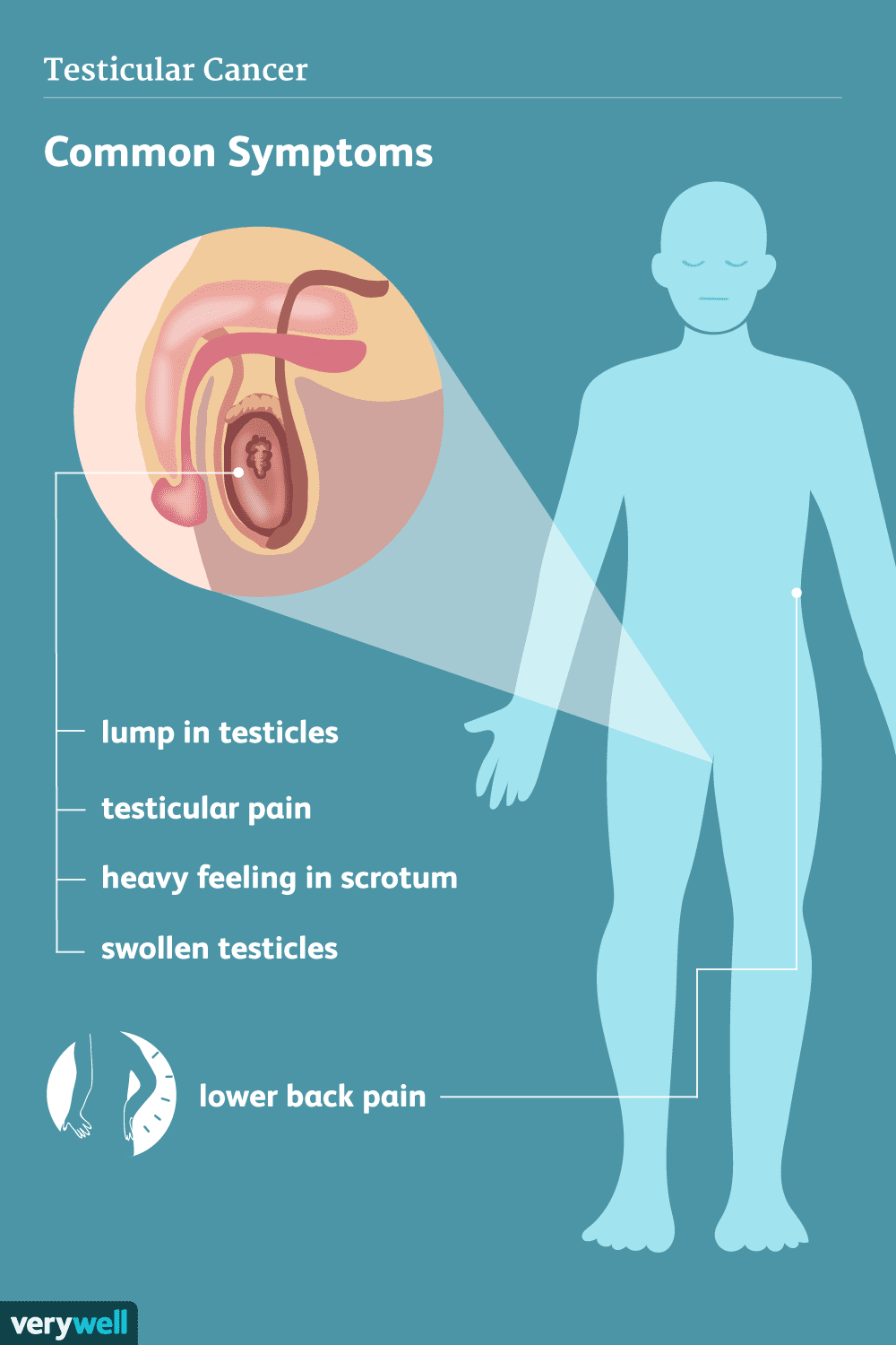 Signs Symptoms And Complications Of Testicular Cancer