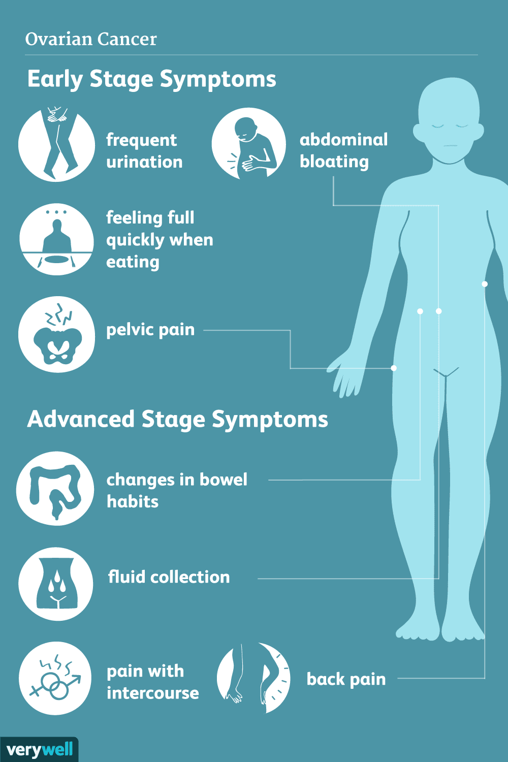 ovarian cancer: signs, symptoms, and complications