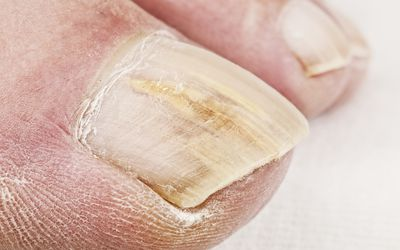 Toenail Discoloration, Fungus & Treatments