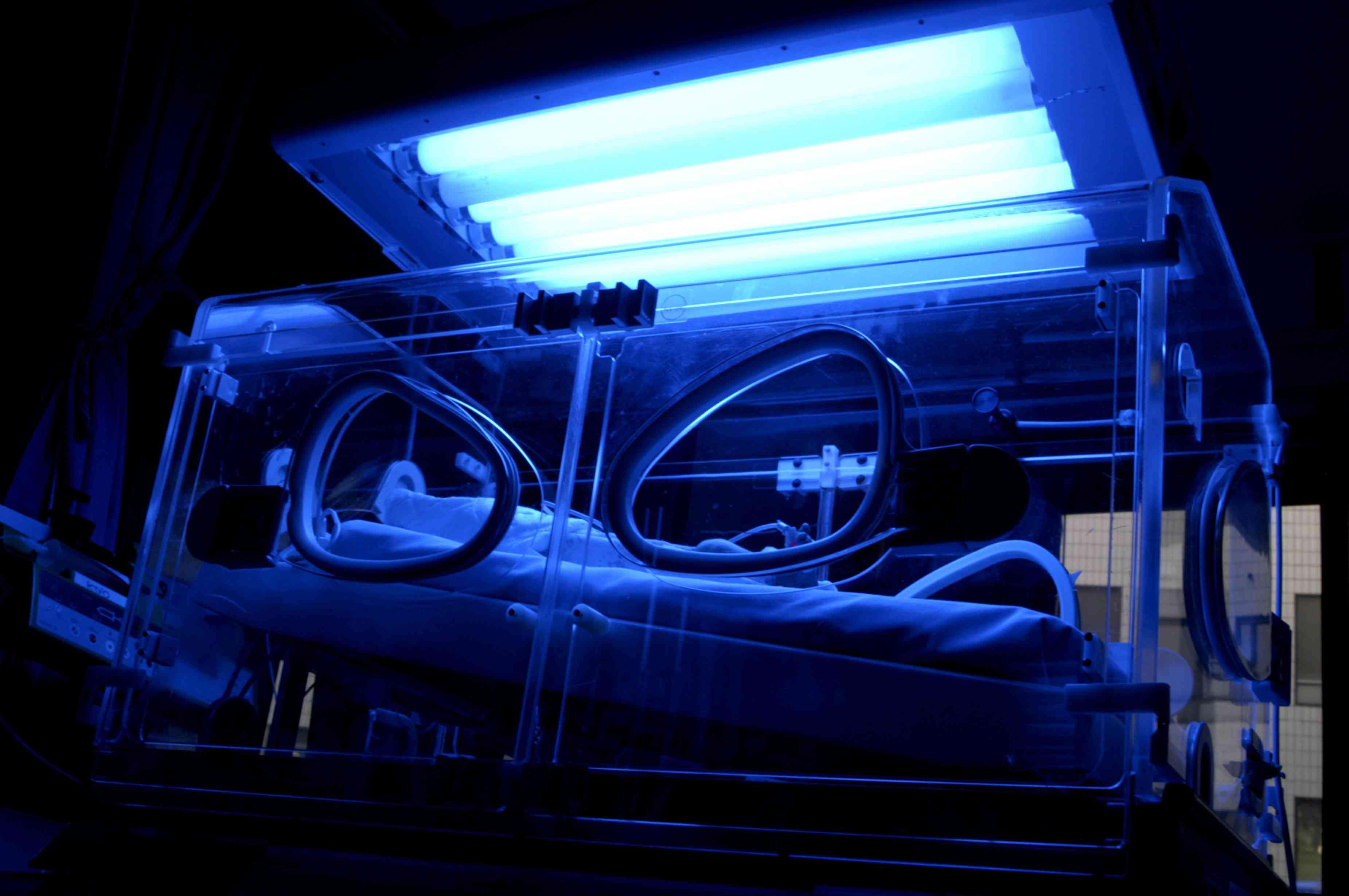 Newborn undergoing phototherapy