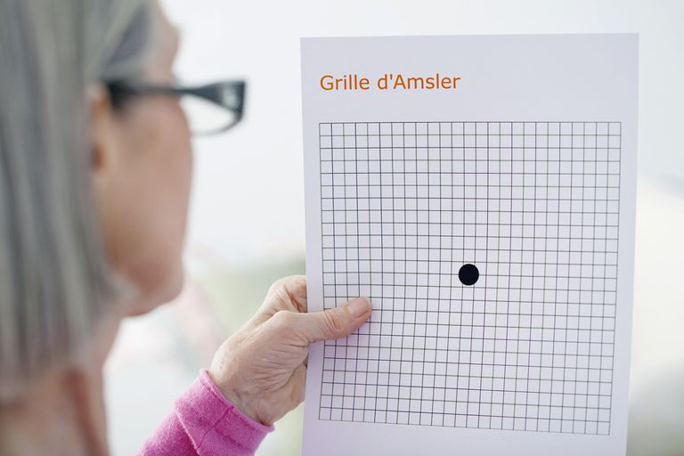 Amsler grid test for macular degeneration.