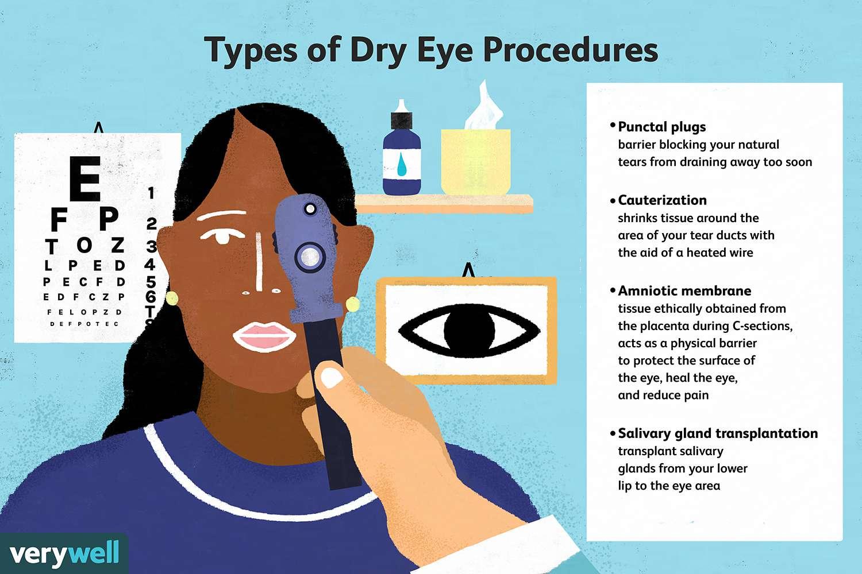 Types of Dye Eye Procedures