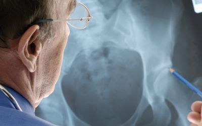 Dislocation of a Hip Replacement Implant