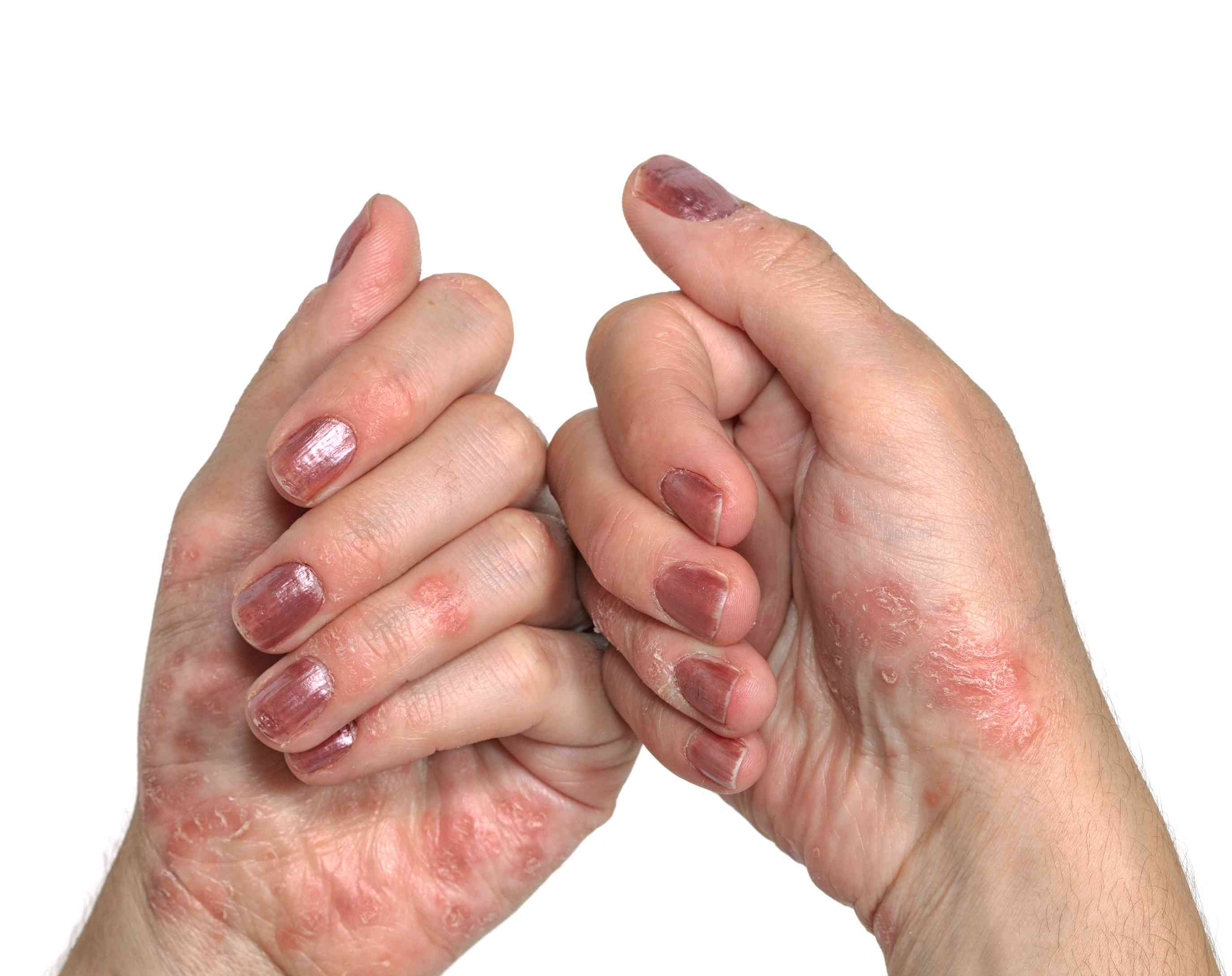 Types Of Psoriasis Explained