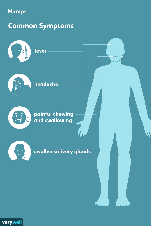mumps symptoms