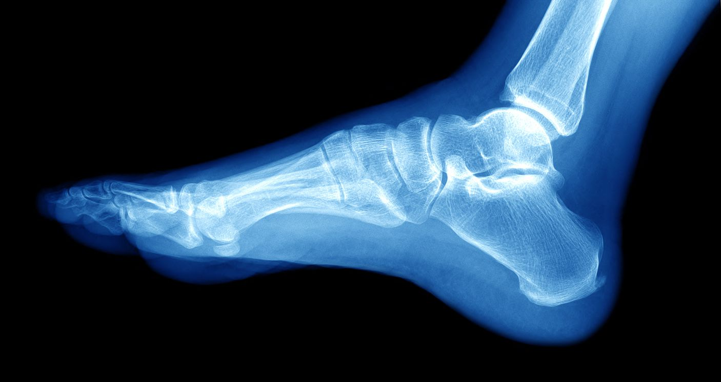 Lateral Malleolus Fracture Symptoms and Treatment