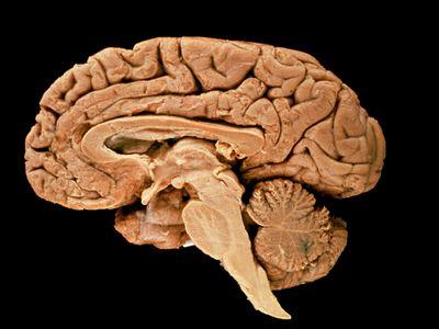 Section through a human brain