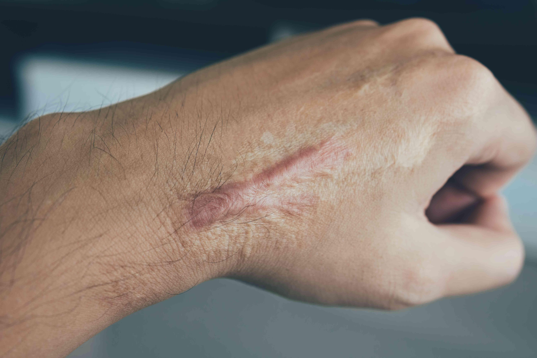 Keloid scar on hand