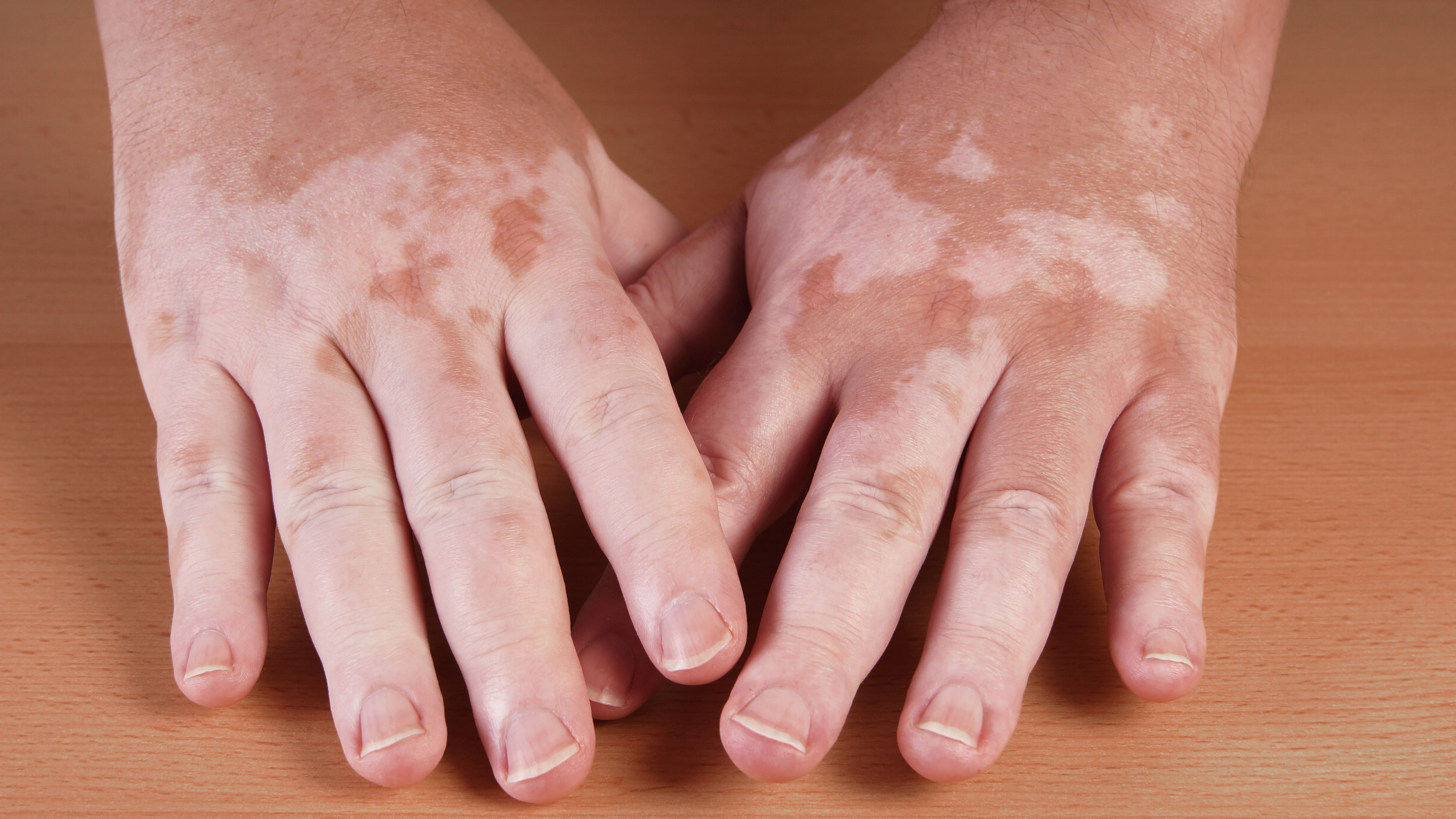 Vitiligo Causes And Treatment Of Skin Pigment Loss