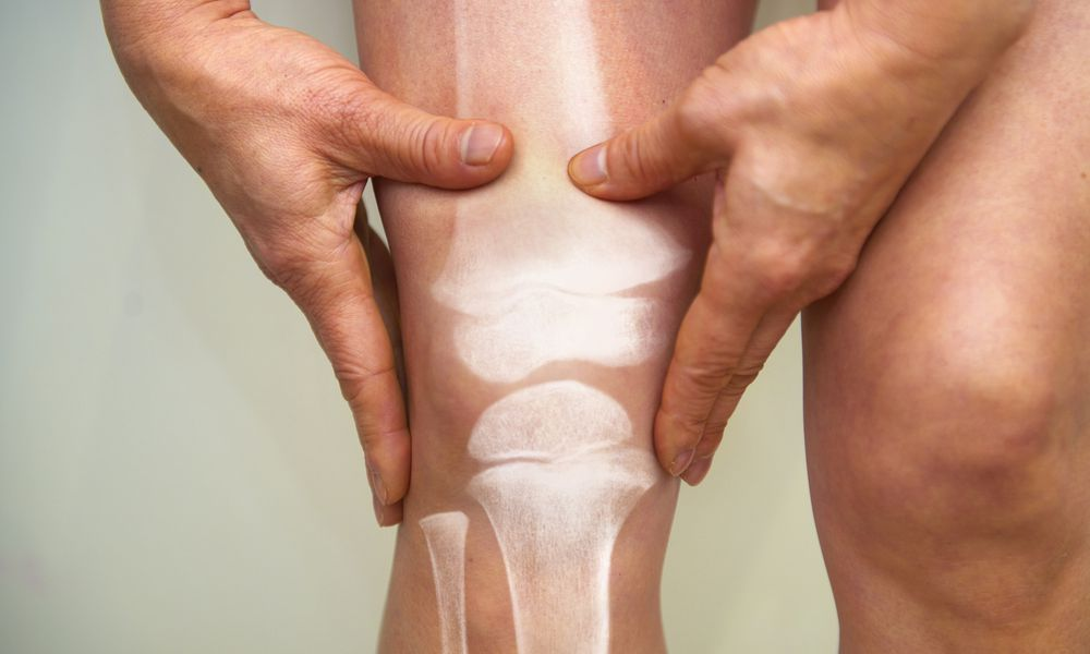 Man holding knee interposed with image of leg bones
