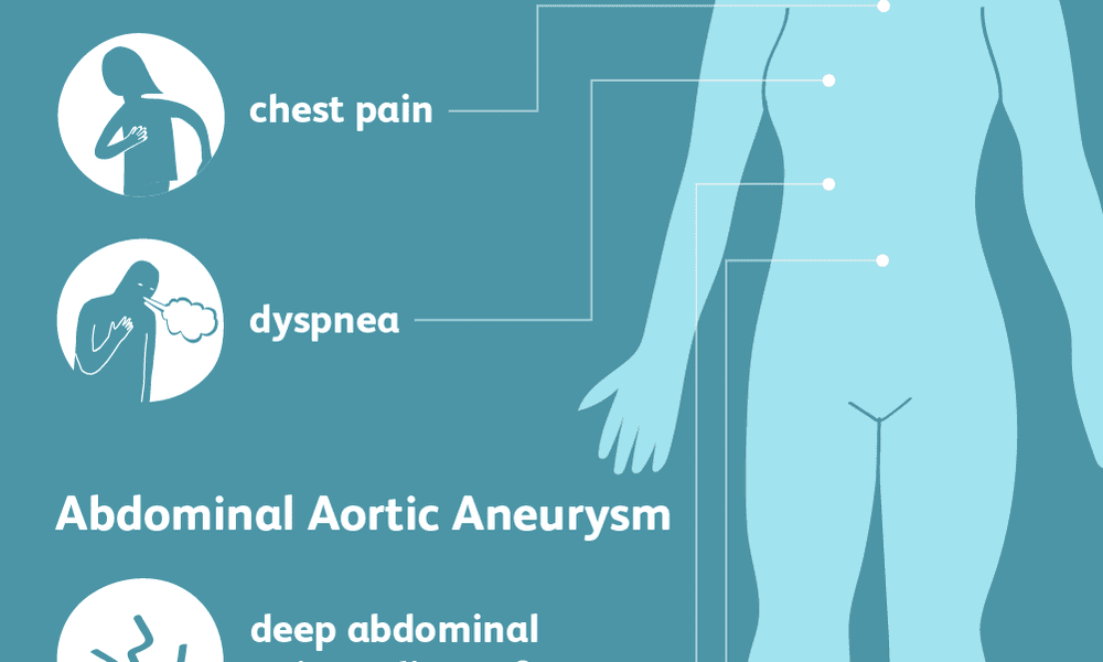 aortic aneurysm symptoms