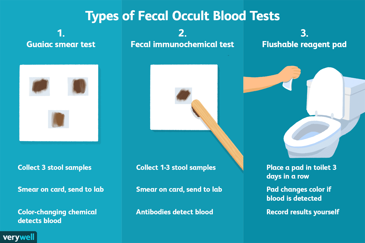Fecal Occult Blood Test (FOBT): Uses, Procedure, Results