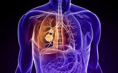 Risk Of Lung Cancer In Former Smokers