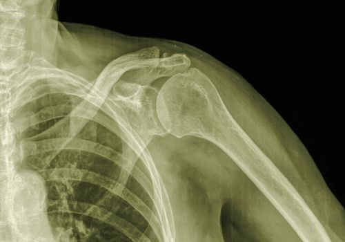 X-ray of left shoulder, 89 year old male