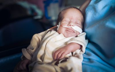 Newborn jejunal atresia