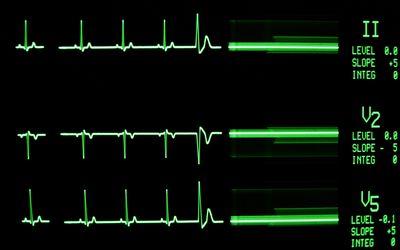 Heart rhythm on a monitor