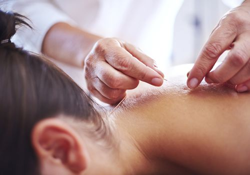 A woman having acupuncture pins put in her neck and upper back