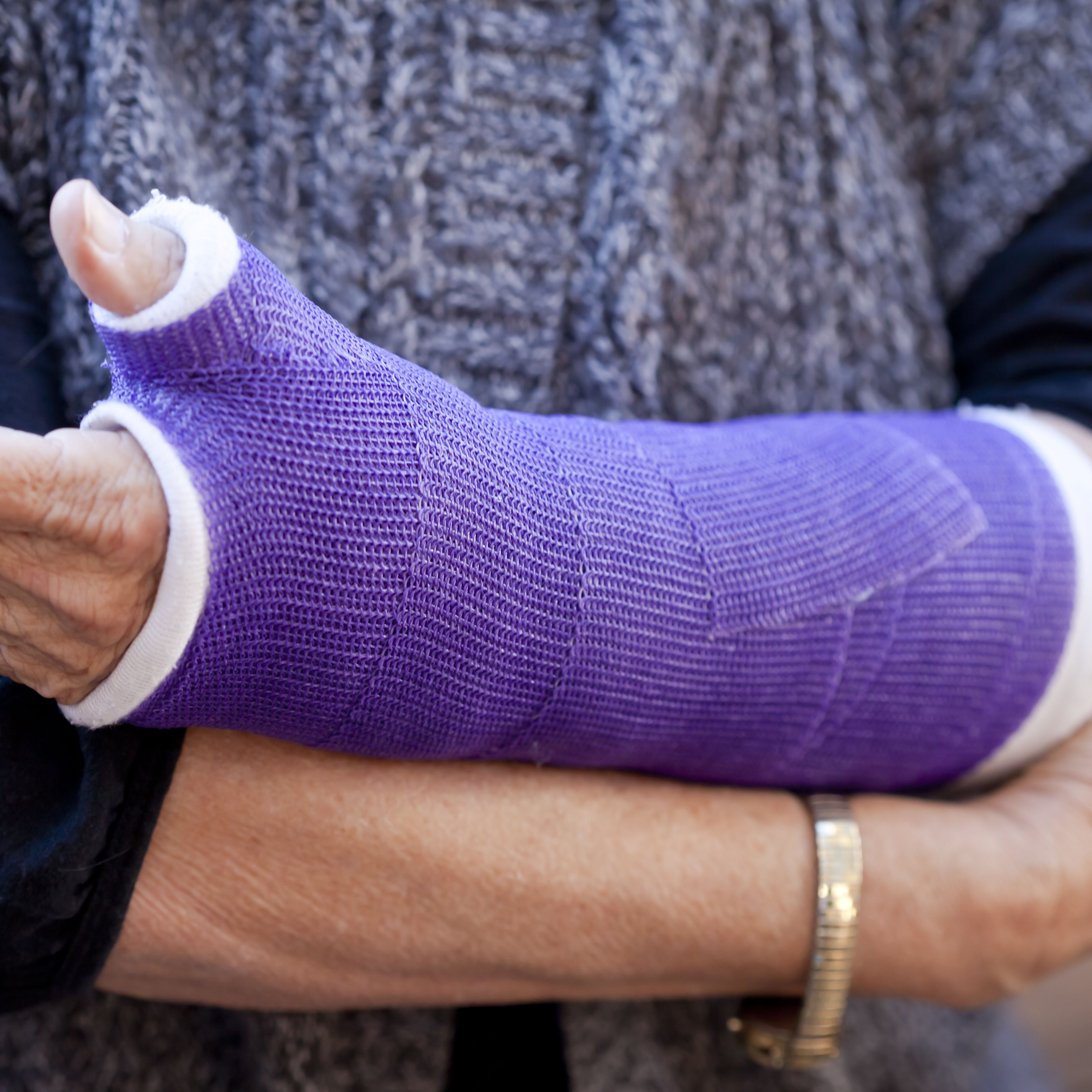 Signs That You Might Have a Fracture