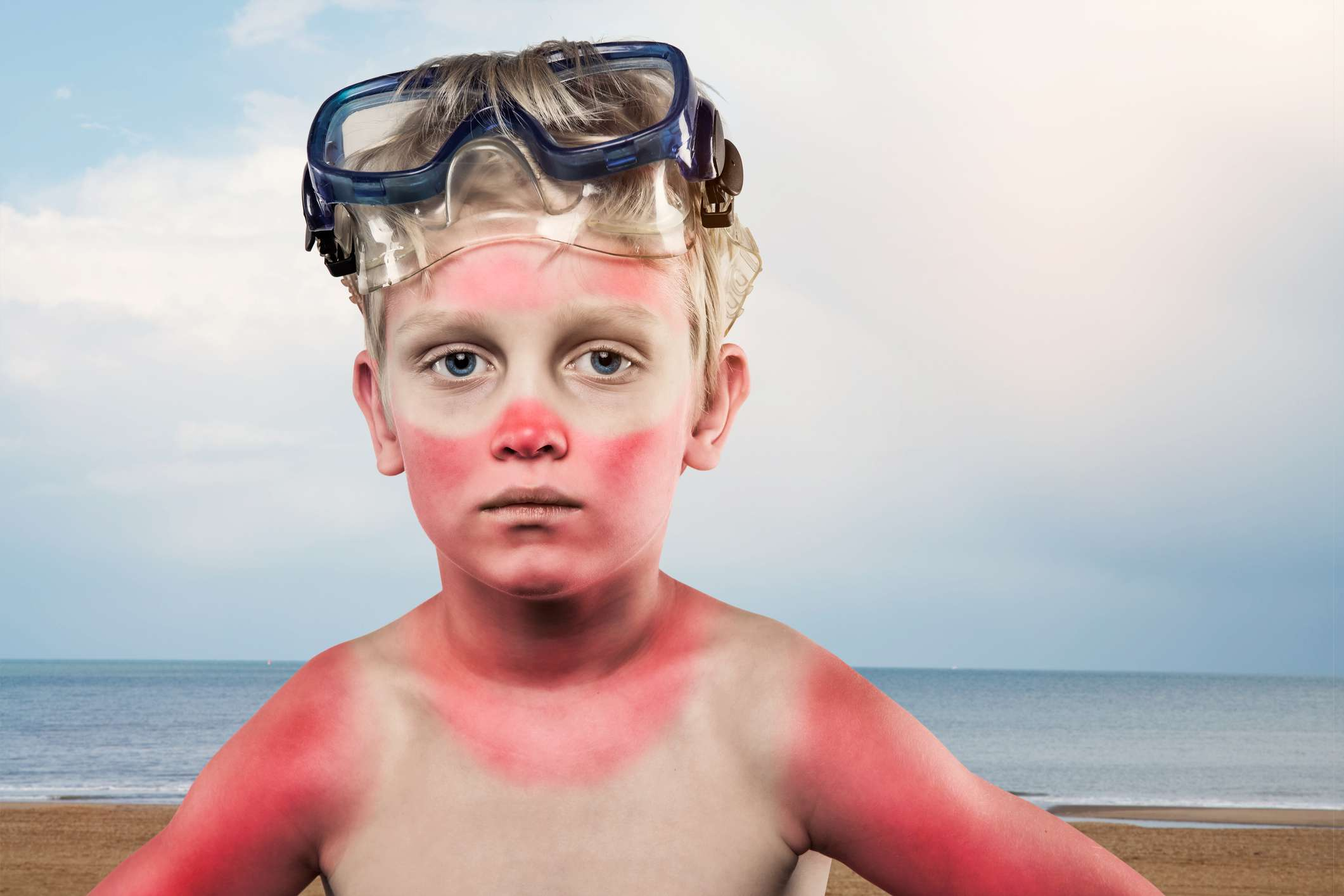 Child with sunburn on face and body