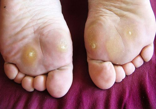 Symptoms Causes And Treatment For Plantar Warts