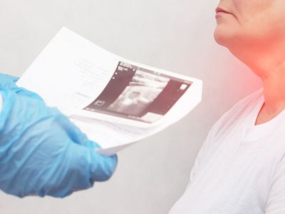 woman with thyroid adenoma