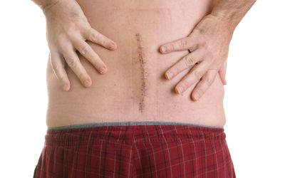 Stapled incision site on a man's lower back