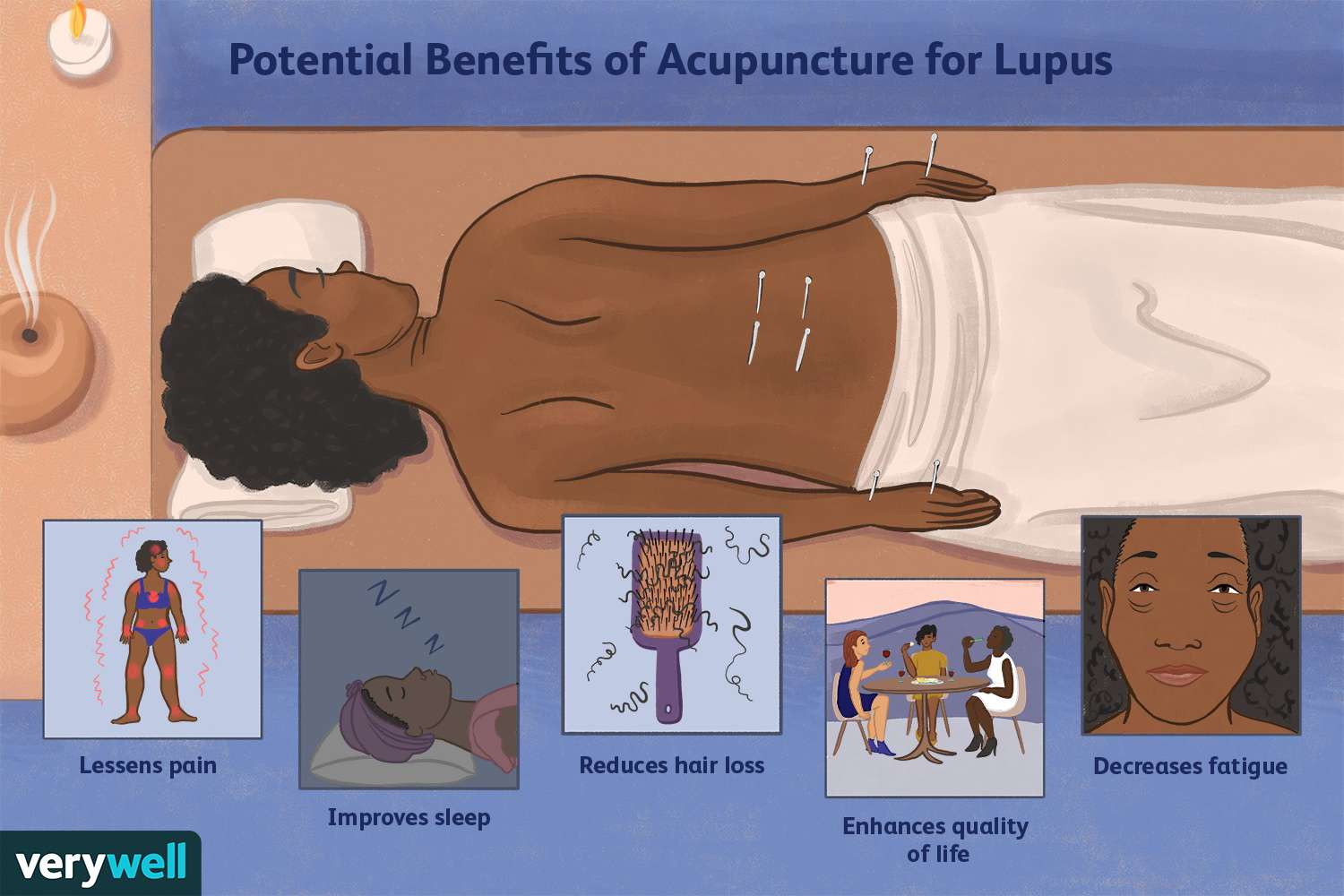 Potential Benefits of Acupuncture for Lupus