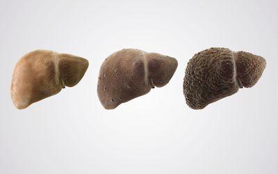 liver graphic