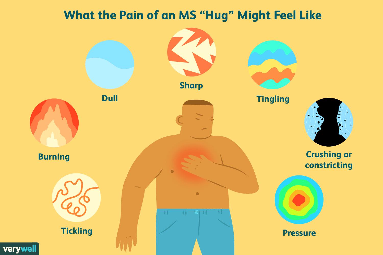 The MS Hug: Understanding Girdle-Band Pain