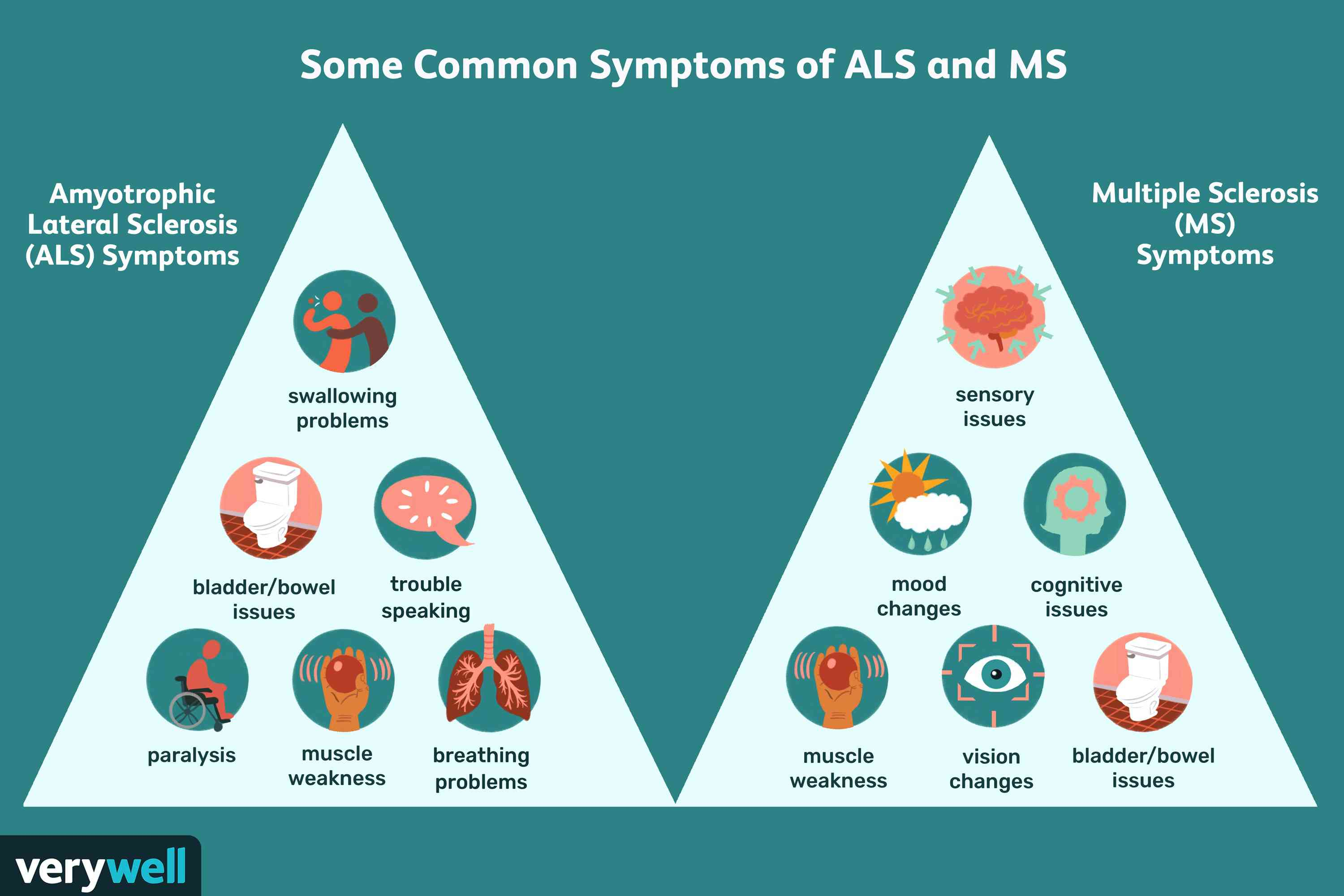 Common symptoms of ALS and MS.