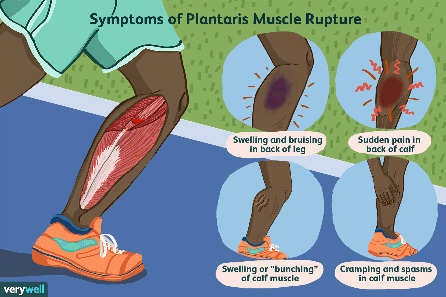 Plantaris Muscle Tears and Calf Pain