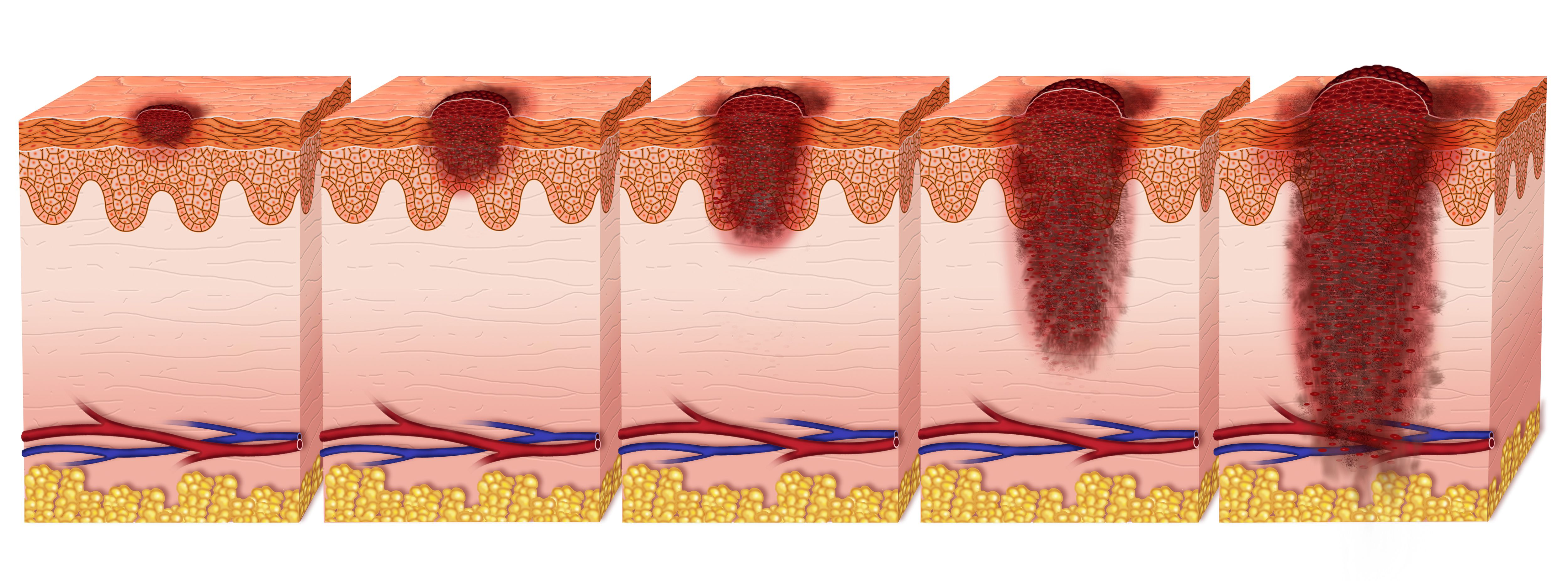 What Each Melanoma Stage Means