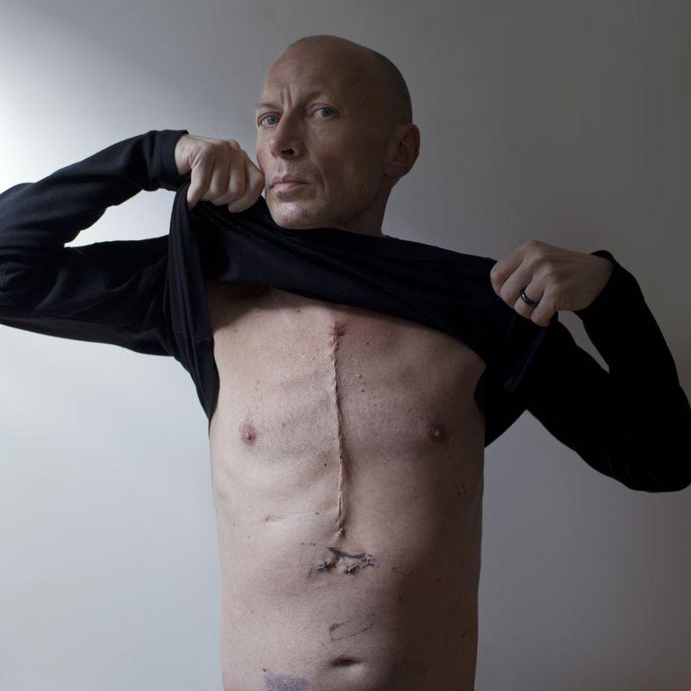 Bypass scar
